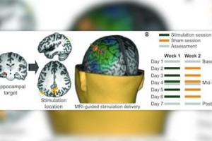 Researchers Shock the Brain to Promote Memory