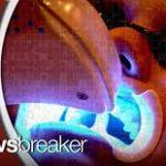 Doctors Warn of Dangers in Over-Bleaching Teeth