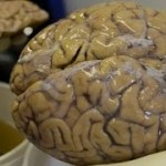 New Tests Identify Alzheimer's Early Stages